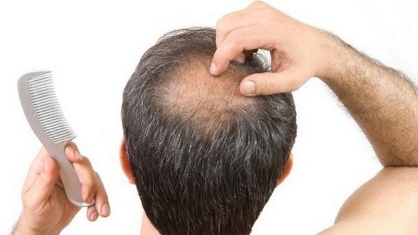 Hairfall3